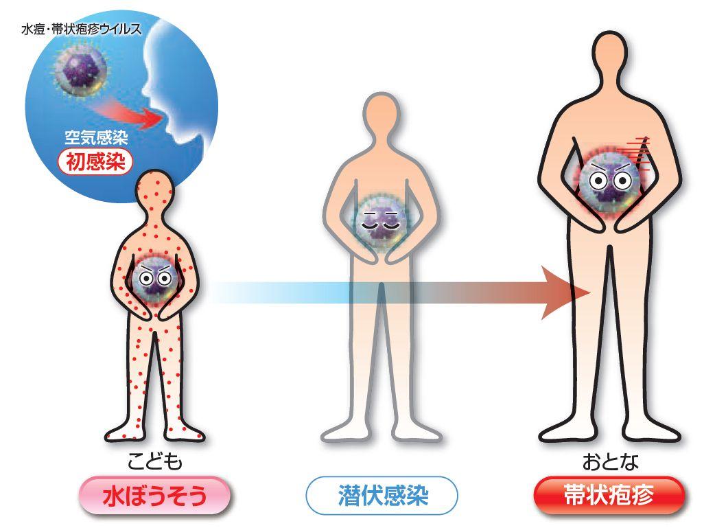 麻疹 対称 蕁 左右